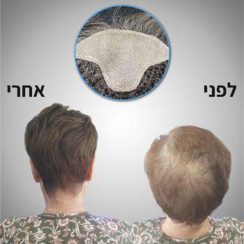 פתרון לשיער דליל