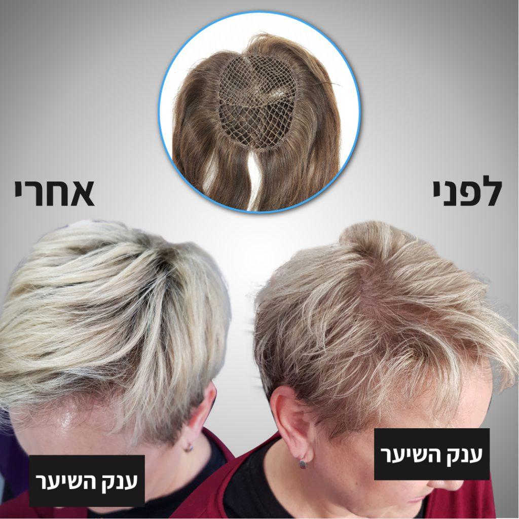 מילוי שיער דליל נשים